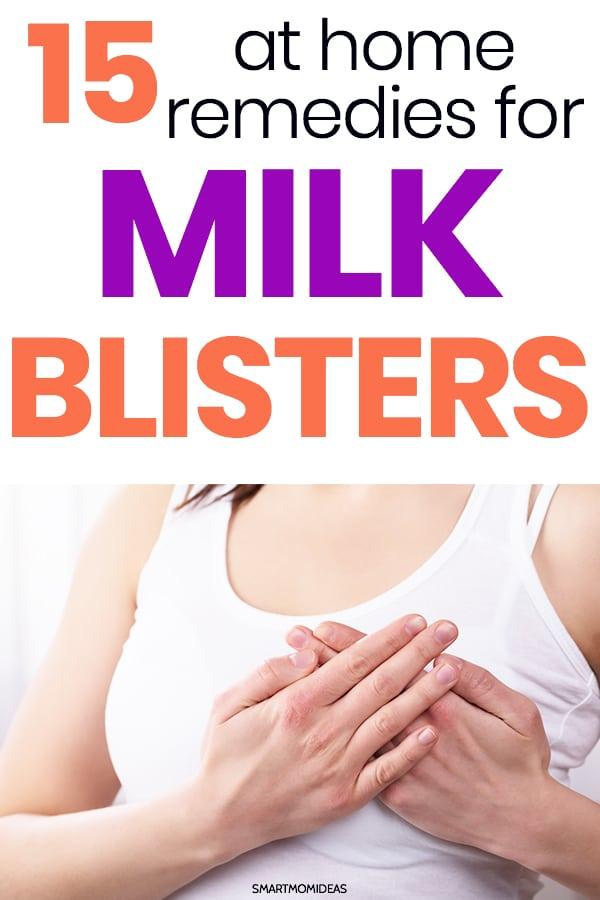 15 Tips For Treating Milk Blisters Smart Mom Ideas